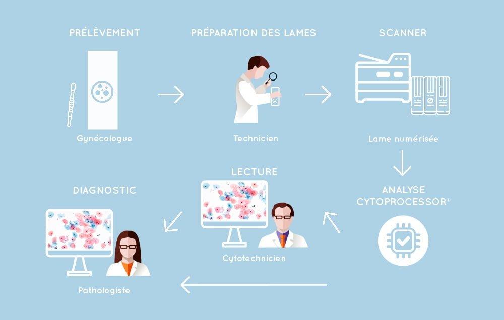 étapes cytologie avec cytoprocessor : prélèvement par un gynécologue, préparation des lames, numérisation des lames, analyse des LBC par cytoprocessor, lecture et diagnostic par un cytotech et ou un pathologiste